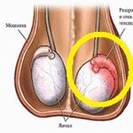 Tohle ničí zánět prostaty za 3 dny! Všichni muži Measuring Spoons, Measuring Cups