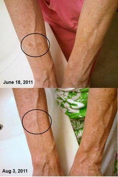 Using Reverse Skin Lightening Treatment  https://kerrygallagher.myrandf.biz/Pages/OurProducts/GetAdvice/SolutionsTool