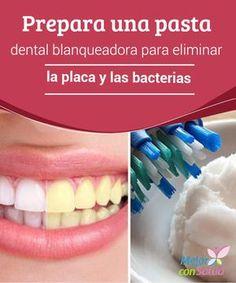 Certain Dental Care Activities - Salud Bucal Dental Assistant, Dental Hygienist, Dental Implants, Dental Health, Dental Care, Pasta Dental Casera, Dental Bridge, Root Canal, Teeth Care