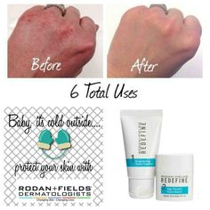 Get your hands winter weather ready with Rodan + Fields hand regimen! Moisturized, soft and younger looking! #redefinehandregimen #beautifulskinisin christyc.myrandf.com