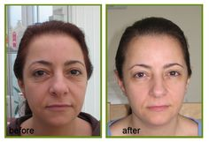 #Skin #Tightening & #BodyConturing, Body #Contouring Without #Surgery, #NonSurgical #SkinTightening for more info::goo.gl/uE4s4C