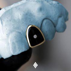 Solid 14K Yellow Gold Diamond Cap Grill With Black Enamel Finishing & Single VS+ Diamond. Custom made to order #Grillz #CustomJewelry #IFANDCO