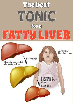 The best tonic for a fatty liver - BestWomenTips.com