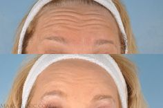 botox-before-after    http://www.maasclinic.com/cosmetic-injections/botox-cosmetic/