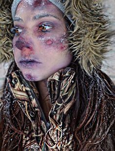 3rd degree frost bite special effects makeup