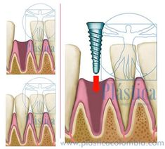 Feature Oral Hygiene, Al Dente, Dental Extraction, Bone Grafting, Dental Implants, It Works