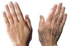 Comment faire pour empêcher vos mains de révéler votre âge ! Recette incroyable !