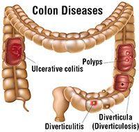 TotalHealth Magazine - Colon Polyps & Colon Cancer Are Preventable