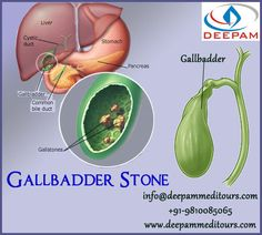 Gallbadder stone treatment