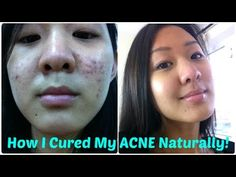 How To Cure Acne Naturally - Best Treatment for Acne - based on the latest scientific research - YouTube