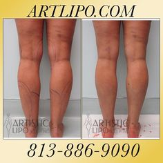 #Cankles, #Ankles, #Calves, and #Knees are areas that many women aren't aware that #Liposuction can help. Slimmer and shapelier #Legs are Possible! See Your Results Immediately! @artisticliposuction! Call us today ☎️813-886-9090 or visit ➡️Artlipo.com to schedule a complimentary consultation! #Artlipo #tumescentliposuction #highdefinitionlipo #Lipo #Tampa #plasticsurgery #cosmeticsurgery