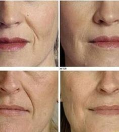 How to prevent neck wrinkles? Home remedies for neck wrinkles. Top 10 ways to get rid of neck wrinkles. Tips for younger looking neck. Under Eye Wrinkles, Neck Wrinkles, Face Cream For Wrinkles, Prevent Wrinkles, Anti Aging Cream, Anti Aging Skin Care, Home Remedies For Wrinkles, Pele Natural, Wrinkle Remedies