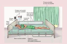 Seizure precautions: nursing care during and after a patient has a seizure.