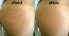 Des remèdes naturels efficaces et les bons gestes à adopter pour éliminer les vergetures en 6 semaines. Anti Cellulite, Stretch Marks, Tattoo Quotes, Hair Beauty, Skin Care, Healthy, Plein Air, Voici, Sports