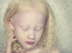 """O """"Albinos Project"""" é um projeto fotográfico criado por Gustavo Lacerda, quando, há alguns anos o albinismo e sua beleza peculiar despertaram sua atenção. Desde o início de 2009, Gustavo, vem pesquisando o universo de albinos para tentar trazê-los para… Continue Reading →"""