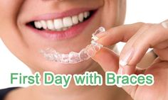 At the end, you have got your braces on or will have got them on in a short time so you need to learn many things about your braces before wearing them.   https://www.thecrookedteeth.com/first-day-with-braces/
