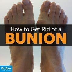 Bunion - Dr. Axe