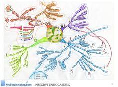 Endocarditis mind map, Pathophysiology, Clinical features, management.