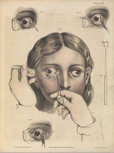 Ces planches anatomiques des siècles passés vont vous horrifier
