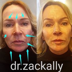 ☝️DERMA LIFT ▪▪▪▪▪▪▪▪▪▪▪▪▪▪▪▪▪▪ Before and 15 minutes after upper face rejuvenation, mid and lower facial sculpting using various density dermal filler. Needle and microcannula techniques were used here to restore lower facial volume, jawline structure, create lift and definition while maintaining her facial proportions. Immediate results, no surgery, no downtime ~~~~~~~~~~~~~~~~~~~~~~~~ TRAINING: UK: http://www.dermamedical.co.uk SWEDEN: http://www.dermamedical.se