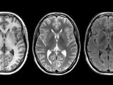 Depression Is NOT A Choice, But A Form Of Brain Damage