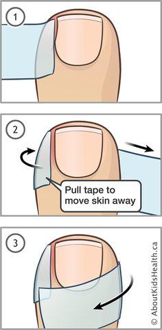 Ingrown Toenail Remedies, Ingrown Toe Nail, Toenail Pain, Natural Antifungal, Types Of Nail Polish, Tongue Health, Nail Infection, Different Types Of Nails, Nail Care Tips