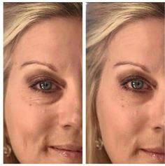 Ariix Jouve! Instant results in 90 seconds with short term and long term benefits! Backed by a 3rd party clinical trial! Non-toxic, chemical free! This product is safe, effective, therapeutic, and multifunctional! 100% 30 day money back guarantee! If interested contact me 231-342-3539 Wellness Industry, Muscle Up, Tired Eyes, Anti Aging Skin Care, Clinic, Health And Wellness, Nu Skin, Multifunctional, Opportunity