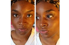 Top Post Today: How to get rid of black spots on your face in just 15 minutes