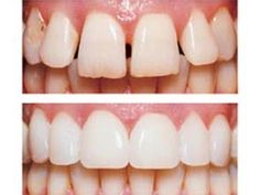 Cosmetic dentistry is aimed to improve the patient's smile as well as self-esteem. You can learn more about aesthetic dentistry and related topics from this informative web site, as well as find some useful guides on this topic.
