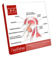 Treating Common Headaches Trigger Point Therapy Course - (INCLUDES NAT CERTIFICATION*)