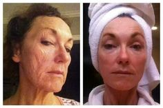 """This is age 64 REDEFINED. Here is Linda Reha's story first-hand. """"Two and half years ago... after my brain surgery and weight loss of 106 lbs, my skin looked like a Shar Pei. I cried that I couldn't find sunglasses big enough to hide my face. I tried many products, some burned, and others did nothing until I found REDEFINE. My after photo is 6 months later after using Rodan + Fields REDEFINE regimen religiously morning and night, adding the AMP MD Roller and the Eye Cream!"""" Message me!"""