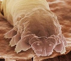 These organisms are called demodicids. The tiny parasites live in pores and hair follicles around the eyelashes, feasting on dead skin cells and oils. Demodicids are extremely common in humans. Although the presence of parasites on people might sound alarming, demodicids are harmless and don't transmit diseases. In some people, usually those with extremely oily skin, or those who use cosmetics heavily, large populations may develop.