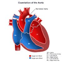 Coarctation of the Aorta. Congenital acyanotic defect in which the aorta is constricted.  Happens in males 3-4 times more often. Can occur anywhere on the aorta, but usually happens just before or after the ductus arteriosus. Preductal is more severe.  This defect causes a high work load for the left side and may lead to heart failure in the early neo-natal period. Postductal coarcation is less severe and may be unrecognized into adulthood. Upper extremities have higher BP, low BP in lower body.