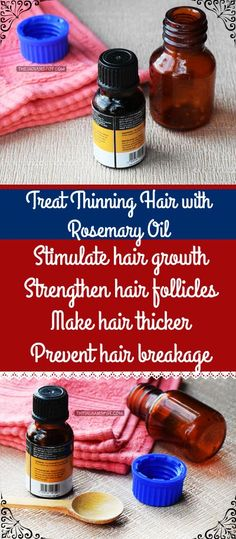TREAT+THINNING+HAIR+WITH+ROSEMARY