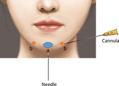 Cosmetic Fillers, Facial Fillers, Botox Fillers, Dermal Fillers, Plastic And Reconstructive Surgery, Plastic Surgery, Filler Injection, Surgery Journal, Hyaluronic Acid Fillers