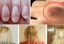 Here are the Ingredients that Can Help you if You Suffer from Dry Hair, Hair Loss, or Weak Nails! List Of Nutrients, Negative Effects Of Alcohol, Hair Loss Causes, Sr1, Nail Polish Trends, Hair Loss Remedies, Eat Fruit, Skin Food, Dry Hair