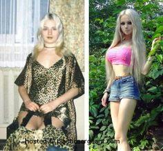 1000+ images about Before and after on Pinterest   Plastic ...