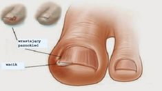 Ingrown toe nail is a common phenomenon seen in people who trim their toe nail too short at the edges. The ingrown toe nail can cause a lot of Ingrown Toenail Treatment, Ingrown Toe Nail, Foot Remedies, Natural Remedies, Toenail Fungus Remedies, Home Treatment, Feet Care, Toe Nails, Nail Polish