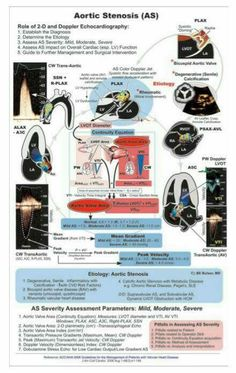 Aortic stenosis Cath Lab Nurse, Cardiac Anatomy, Cardiac Sonography, Aortic Stenosis, Medicine Notes, Medical Photos, Cardiac Nursing, Nursing Notes, Medical Illustration