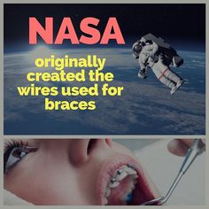 Wiring used for braces contains nickel titanium. NASA originally developed this alloy for use in the space program. When used in orthodontic appliances, these thin, highly elastic and flexible wires are activated by body heat and able to maintain their shape after being bent and attached to the teeth. •••••••••••••••••••••••••••••••••••••••••••••••• #fact #facts #economy #economics #finance #wsj #wallstreet #factstho #factsonly #knowledge #learning #education #facts #info #information #facts…