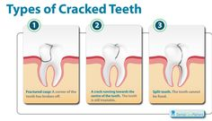 Cracked or fractured teeth may or may not be painful. It is recommended that you see an oral health professional, as early recognition can improve the survival of the damaged tooth Dental Humor, Dental Hygiene, Dental Care, Oral Health, Dental Health, Dental Implant Procedure, Dental Implants, Dental Fun Facts, Cracked Tooth