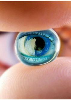 Göz lazer operasyonundan sonra nelere dikkat edilmelidir?