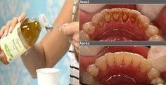 Cet ingrédient a le pouvoir de détartrer votre bouche naturellement et la désinfecter de toutes bactéries.