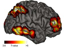 Research using magnetic resonance tomography (MRT) have now been able to demonstrate that a specific network in the brain that is activated when this lucid consciousness is attained. All of these regions are associated with self-reflective functions. This research into lucid dreaming gives the authors of the latest study insight into the neural basis of human consciousness.