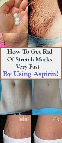 How To Get Rid Of Stretch Marks Very Fast By Using Aspirin – Health and Fitness Health Tips For Women, Health Advice, Health And Beauty, Aspirin, Healthy Tips, How To Stay Healthy, Healthy Drinks, Healthy Food, Healthy Women