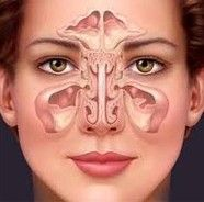 Sinusitis symptoms resolved with Young Living Products - lots of info and oil 'recipes!'