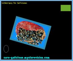 Lithotripsy For Gallstones 144520 - Cure Gallstone