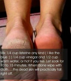 Homemade dead skin remover. Need to try it sometime!!!
