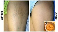 Varicose Vein Remedy, Varicose Veins, Foot Remedies, Natural Remedies, Health Remedies, Body Inflammation, Hormonal Changes, Natural Treatments, Skin Care