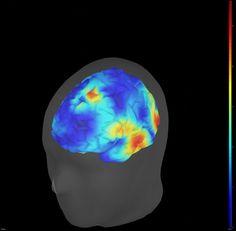Activation du cortex visuel, auditif et somatosensoriel